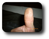 Robert W Nelmes (Bob) Right thumb Sept 14 2020